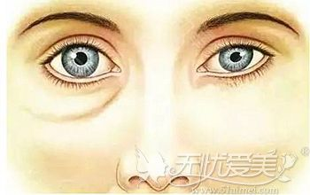 眼袋容易让我们看上去显老