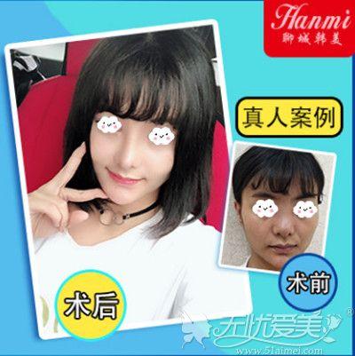 聊城韩美自体脂肪面部填充案例