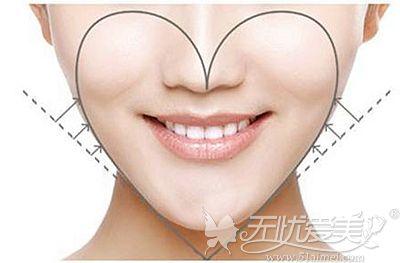 面部脂肪填充后可以增加面部立体感