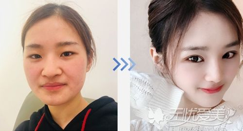 韩国纯真mesh假体鼻综合案例