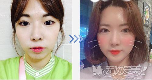 韩国纯真五点埋线双眼皮手术案例