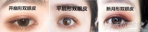 宽度相同形状不同的双眼皮