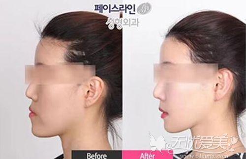 韩国菲斯莱茵双鄂手术对比案例