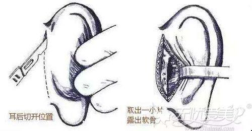 取耳软骨的手术切口