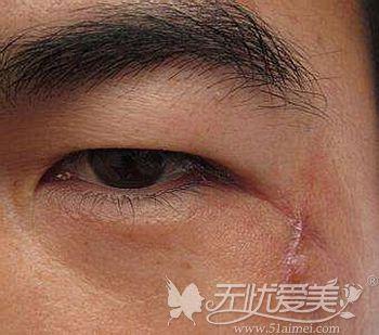 面部出现疤痕会影响美观
