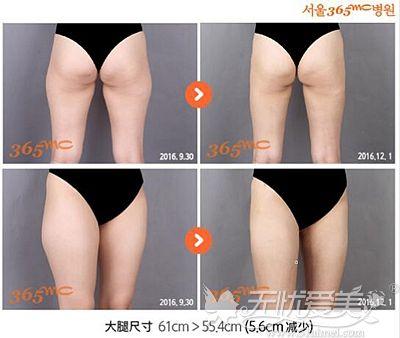 在韩国365mc做威塑吸脂的效果对比