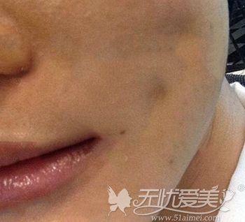 面部吸脂后出现皮肤粘连的原因