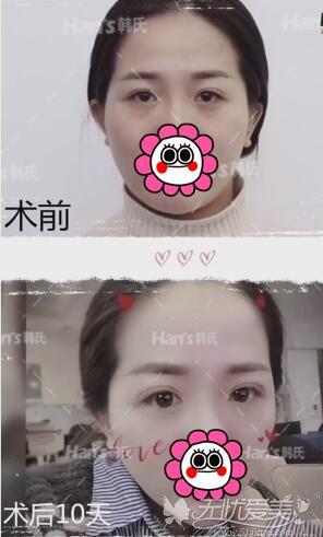济南韩氏双眼皮修复案例
