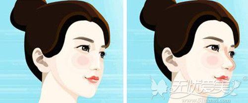 直鼻和小翘鼻的区别