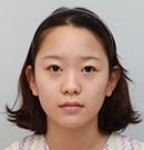 天生面部扁平医生建议我做了鼻综合和全脸脂肪填充