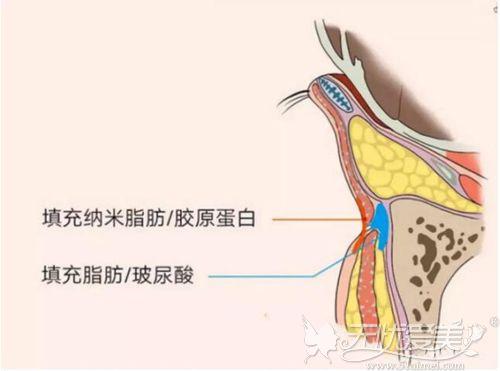 玻尿酸和胶原蛋白填充泪沟的位置