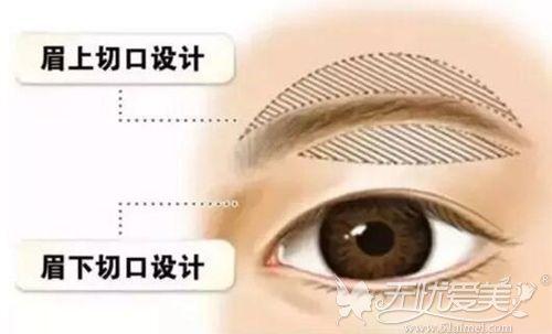 提眉手术的切口