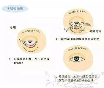 内切去眼袋的手术原理
