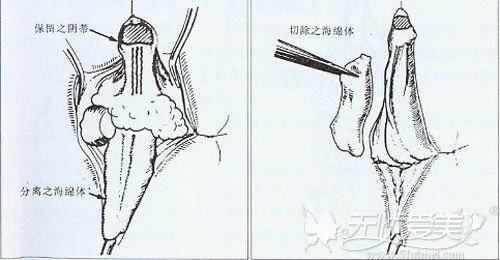 阴蒂整形手术原理