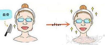 就算是你的下颌角神经线高也不能在手术的时候贪多!