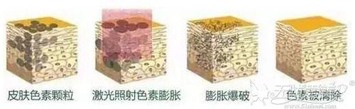 激光治疗色素沉淀原理