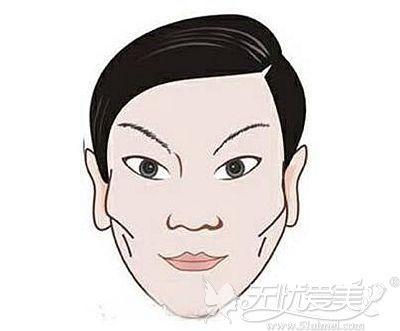 颧骨和眼眶骨高给人的影响