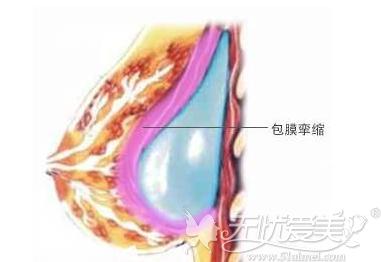 假体包膜挛缩不能同时做脂肪填充