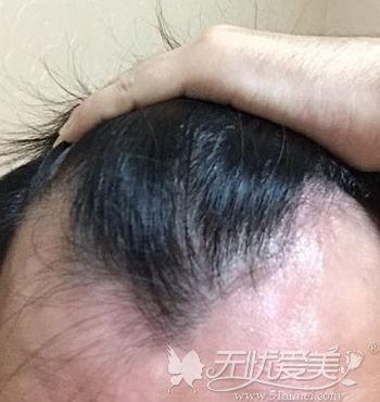 前额脱发的症状