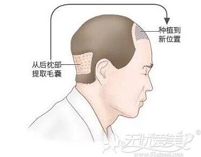 前额植发的原理解析