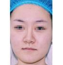 做完全脸脂肪填充3个月后效果越来越满意 来给大家分享下术前