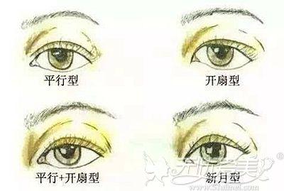 双眼皮的多种风格