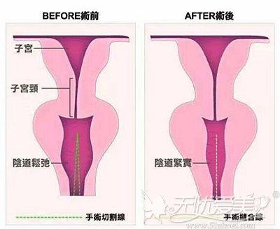 阴道紧缩手术的效果对比