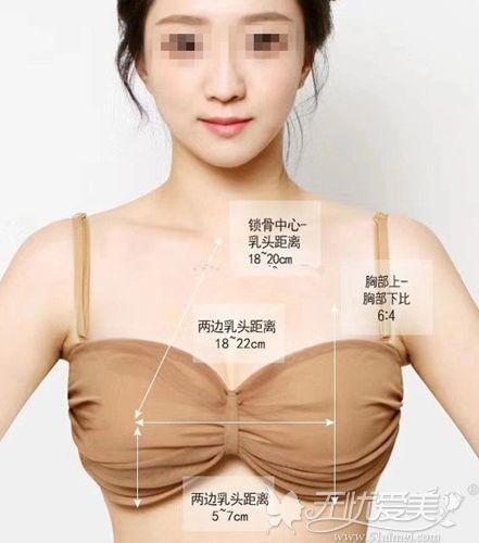 隆胸大小的数据