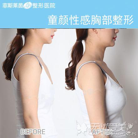假体隆胸前后对比案例