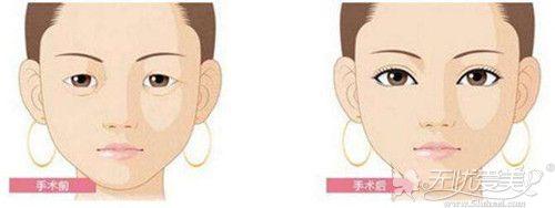 双眼皮手术效果对比