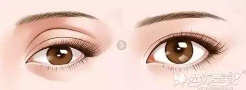 深邃的眼皮效果和平行的眼皮效果对比