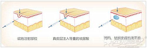注射玻尿酸填充额头的过程