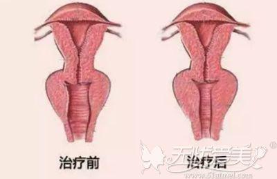 阴道紧缩手术的效果