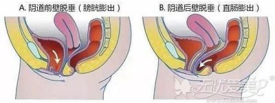 阴道壁膨出的轻重程度