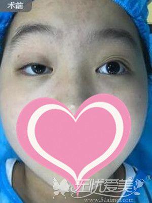 眼睛一大一小的我做了上睑下垂矫正手术现在恢复的很自然