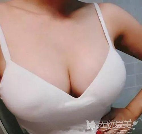 英各曼胸假体丰胸术后效果