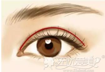 埋线双眼皮手术受到很多人的选择