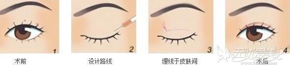 埋线双眼皮手术过程