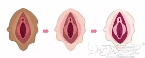 阴唇漂红效果