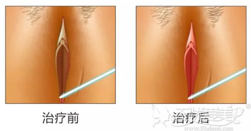 激光私密漂红治疗效果对比