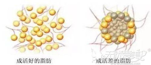 自体脂肪移植细胞存活效果对比