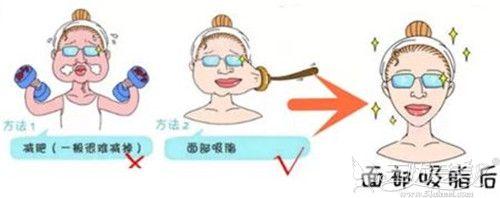 做完面部吸脂手术才戴三天头套的来告诉你戴多久才有效果