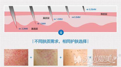 他们说千万别做微针是担心术后皮肤爆痘会老的快