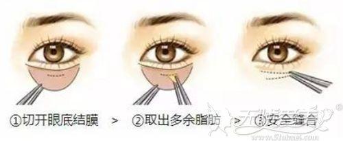 去眼袋手术的过程
