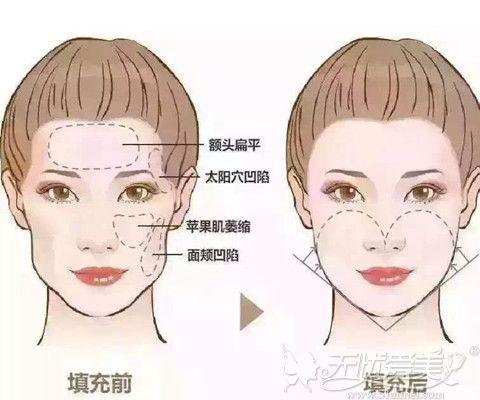 脂肪填充也可以改善面颊凹陷颧骨大的问题