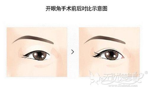 开眼角手术效果对比