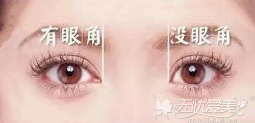 有做开眼角手术和没做开眼角手术区别