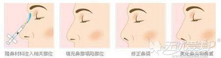 玻尿酸隆鼻的原理