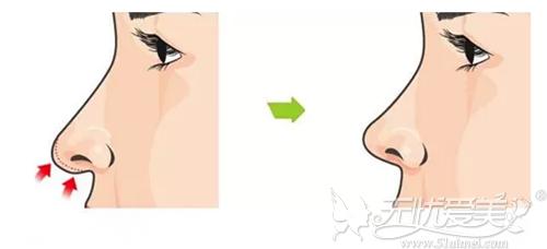 塌鼻梁做了立体旋翼鼻之后还能揉捏鼻子吗?