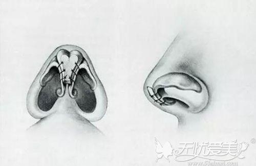 耳软骨垫鼻尖原理